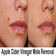 30 Best Skin Tags Images Skin Tag Skin Skin Tag Removal