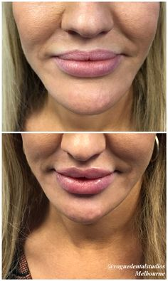 Do you already have beautiful and full lips but want to take it next level? Our lip fillers can transform your smile and just give it that little extra oomph! Forget lip liners and lip plumpers! Dermal fillers are the way to go!  Our lovely patient had amazing volume but wanted to make a statement. With only 1ml on her borders and pillows, there was an instant lift in the natural formation of her smile. She can't be happier! #dermalfillers #lips #smiles #voguedentalstudios #melbourne…
