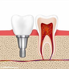 Healthy teeth and dental implant. Implant tooth, health tooth medical dentistry,… - Everything About Dental Implant Teeth Health, Healthy Teeth, Dental Health, Oral Health, Teeth Implants, Dental Implants, Humor Dental, Dental Hygienist, Dentist Nyc