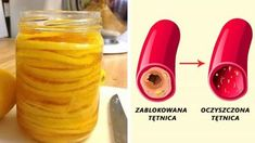 Cholesterol, Detox, Natural Remedies, Smoothies, Cake Recipes, Water Bottle, Hair Beauty, Drinks, Health