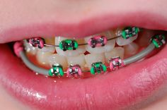 Recipes for people with braces ~ Recipes for after mouth surgery -- Curated by: Dr Stephen T E Malfair Inc. | Suite 301-1890 Cooper Rd, Kelowna, BC V1Y 8B7, Canada  | 250-860-8900