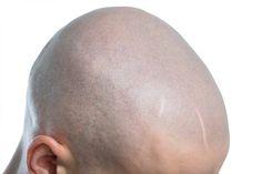 mikropigmentacja skóry głowy Znakomity lek na łysienie
