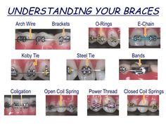 Blaine Langberg - Ridgefield, CT - Understanding Your Braces Braces Humor, Dental Humor, Dental Hygiene, Dental Care, Dental Braces, Teeth Braces, Dental Surgeon, Braces Problems, Cute Braces Colors