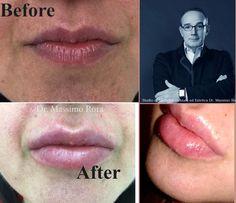 Lip Augmentation with HA Filler . Aumento labbra con Acido Ialuronico .