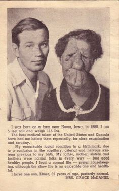 A newspaper cutting featuring Grace MacDaniels. She was known as the 'Mule-Faced Woman' and was part of a traveling circus who labeled her the 'ugliest woman in the world'.