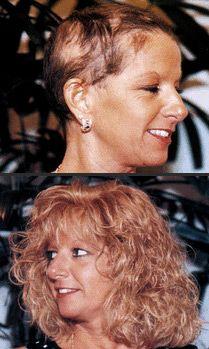 Have the hair you want Claude Thomas Salon and Spa Hair Issues, Hair Spa, Hair Loss, Salons, Makeup, Make Up, Lounges, Losing Hair, Hair Falling Out