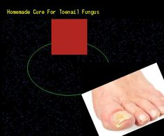 Homemade cure for toenail fungus - Nail Fungus Remedy. You have nothing to lose! Visit Site Now