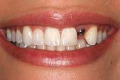 Phương pháp trồng răng sứ là giải pháp phục hình răng tôt nhất cho những bệnh nhân bị mất răng nhằm lấy lại khả năng ăn nhai vốn có