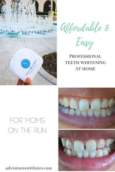 Affordable and Easy Professional Teeth Whitening At Home For Moms On The Run : Smile Brilliant Chocolate Benefits, Color Correcting Concealer, Classic Updo, Done With Life, Applying False Eyelashes, French Phrases, Best Skin Care Routine, Body Cells, Cleanse Your Body