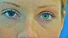 Heterochromia iridum - the condition in which someone is born with two different…