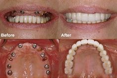 Dentaltown - You can replace your removable denture with implants and a fixed bridge.