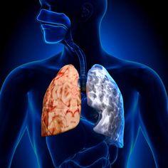 Investigaciones sugieren que la Enfermedad Pulmonar Obstructiva Crónica, puede encontrar alivio con ciertos componentes de vegetales como el beta caroteno.