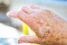 It doesn't matter what color your skin is, age spots are sure to appear once you are beyond the 60s mark. These age spots tend to appear on areas that are often exposed to the sun such as the face, neck, and hands. Fortunately, age spots are not something to worry about because they are …