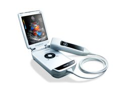 Vscan | Pocket-sized ultrasound device being utilized in both developing and developed regions of the world. Launched in 2010, the hand-held tool costs just $7,900 (compared to traditional ultrasound consoles which can cost as much as $150,000) and has improved access to advanced prenatal care in areas of rural China, India and Africa.