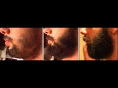 The Minoxidil Beard: How to Use Rogaine to Thicken Your Facial Hair