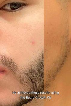 Beard Growing Tips, Growing A Full Beard, Beard Styles For Men, Hair And Beard Styles, Beard Growth Kit, Beard Tips, Beard Ideas, Mens Hairstyles With Beard, Medium Long Hair