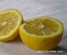 lemons for acne scars