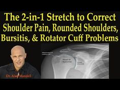Stretch to Correct Shoulder Pain, Rounded Shoulders, Bursitis, Rotator Cuff - Dr Mandell Shoulder Pain Exercises, Shoulder Workout, Shoulder Injuries, Bursitis Shoulder, Shoulder Dislocation, Rotator Cuff Exercises, Posture Fix, Bad Posture, Shoulder Pain Relief