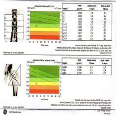 Osteoporosis   Unidad de Artritis y Reumatismo