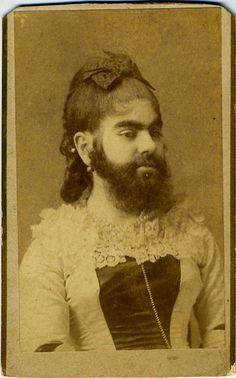 """BEARDED LADY ANNIE JONES . Carte de visite. Pencil inscription on back """"Miss Anne Jones Age 16"""". Charles Eisenmann photography Annie married twice, toured Europe and invested her considerable earnings in Real Estate."""