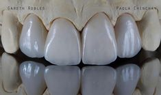 Our passion #veneers #carillas #emax #passion #dental #estomatologia #dentistry #odontology #odontologia #dentalphotography by gareth.robles Our Dental Veneers Page: http://www.lagunavistadental.com/services/cosmetic-dentistry/veneers/ Other Cosmetic Dentistry services we offer: http://www.lagunavistadental.com/services/cosmetic-dentistry/ Google My Business: https://plus.google.com/LagunaVistaDentalElkGrove/about Our Yelp Page…