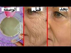 d7492a340 سر من اسرار الدكتور جمال الصقلي لازالة تجاعيد الجبهة وحول العين والفم و  النتيجة في 3 ايام. YouTube