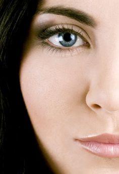 What is a cheek lift by percutaneous cheek suspension?