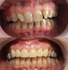 DENTUSTA Diş Kliniği Zirkon uygulaması Muayenenizi olmak için randevunuzu alın. Hayata gülerek bakın Hastamız üst ön dişlerinin görünümünden rahatsız olduğu şikayeti ile geldi. Planlaması yapıldı.Zirkon porselen tedavisi ve hekimin sanatsal görüş açısı sayesinde son haline geldi.