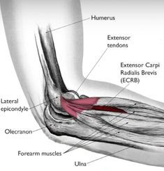 How to heal your tennis elbow with only a rubber band — Dr Erin B