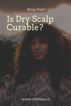 Is dry scalp curable? Find out by reading more. Hair Care Recipes, Hair Care Tips, Hair Tips, Natural Hair Types, Natural Hair Care, Natural Beauty, Healthy Scalp, Healthy Hair, Shampoo For Dry Scalp