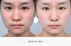 Clarify skin Before and after. Website: en.daprs.com #DApasticsurgery #plasticsurgery #koreaplasticsurgery #cosmeticsurgery #koreanbeauty #dermotolgy #skincare #skintreatment #clearskin #beautiful #koreanplasticsurgery #confident #beforeafter #beforeandafter #skinclarify #clarify