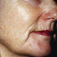 Best Doterra Oil For Wrinkles