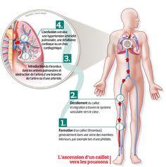 Hypertension Artérielle Pulmonaire, Surgery, Detox, Medicine, Nurse Education, Culture, Google, School, Pandas