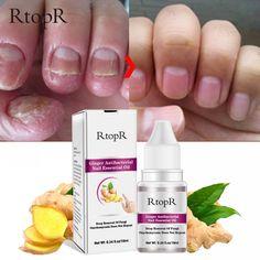 Fungal Nail Infection Treatment, Toenail Fungus Treatment, Nail Polish, Gel Nails, Nail Oil, Nail Growth, Healthy Nails, Black Nails, Yellow Nails
