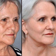 Natural Hair Mask to Boost Hair Growth - Distratile Beauty Tips For Face, Natural Beauty Tips, Natural Hair Styles, Hair Beauty, Face Tips, Beauty Care, Beauty Hacks, Creme Anti Rides, Natural Hair Mask