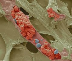 Colored SEM of red and white blood cells inside a small blood vessel. The sample was prepared by freeze fracturing: rapidly freezing the sample with liquid nitrogen so that tissues are instantly preserved. When the sample is broken (fractured), the inner structures are revealed. In this frame, a tiny vein, or venule, has been opened to show the blood cells inside