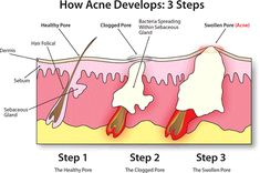 Everything You Need to Know To Get Rid of Cystic Acne for Good