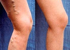 Vein Treatment Clinic provides varicose vein treatment by expert doctors.We also treat thread veins, leg pain, bulging veins and other venous conditions. Our clinics are located in New York, San Diego, New Jersey and Texas. Varicose Veins Causes, Varicose Veins Treatment, Health Advice, Health And Wellness, Health Fitness, Fitness Workouts, Circulation Sanguine, The Cure, Beauty