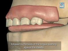 Normal Swallow affecting Dental & Facial Development - YouTube
