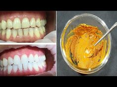 In two minutes, the white teeth whitening and globe such as pearls, this recipe / treatment at home Teeth Whitening Methods, Beauty Tips, Beauty Hacks, Get Whiter Teeth, Teeth Care, White Teeth, Teeth Cleaning, Home Recipes, Cavities