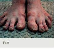 Outcome Ballerina Feet, Ballet Feet