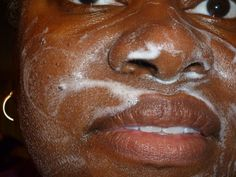 Burkes using de Even Skin Tone, Your Skin, Skin Care, Skincare Routine, Skins Uk, Skincare, Asian Skincare, Skin Treatments