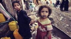 Jemen: Mehr als eine Million Kinder von Unterernährung betroffen