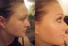 Tento jednoduchý trik Vám pomůže odstranit černé tečky už za pár minut! - Acne Solutions, Clear Face, Hair Skin Nails, How To Get Rid Of Acne, Body Love, Beauty Hacks, Facial, Hair Makeup, Perm