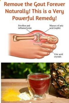 The gout is a very complicated form of the arthritis that is usually overlooked by those people who have not experienced it ever, and it is covered in mystery. This health condition can be so unbearable for those people who have it.