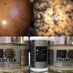 Hair loss products that work