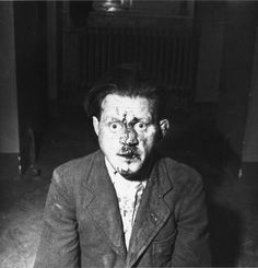 "An SS prison guard at Buchenwald, beaten by prisoners after the liberation, by Elizabeth ""Lee"" Miller (1945). Some guards donned civilian clothes and tried to escape. They were generally spotted by their former victims and savagely beaten. The lucky ones, like this man, were rescued by Allied soldiers and locked up for their own safety. Some, indeed, were killed by Americans outraged at what they found in the camp."