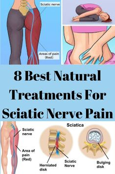 8 Best Natural Treatments For Sciatic Nerve Pain – Healthy Solutions 24 Source by Sciatic Nerve Relief, Sciatic Pain, Piriformis Syndrome, Sciatica Exercises, Muscle Spasms, Nerve Pain, Abdominal Muscles, Regular Exercise, Massage Therapy