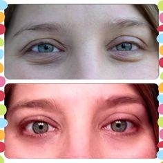 Kim Lynn used the eyecream to get these results.