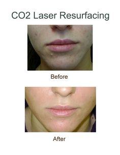 Facial resurfacing brands rated with